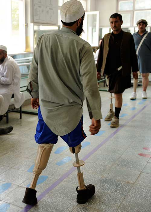 Three men with landmine injuries practice walking on their prosthetic legs